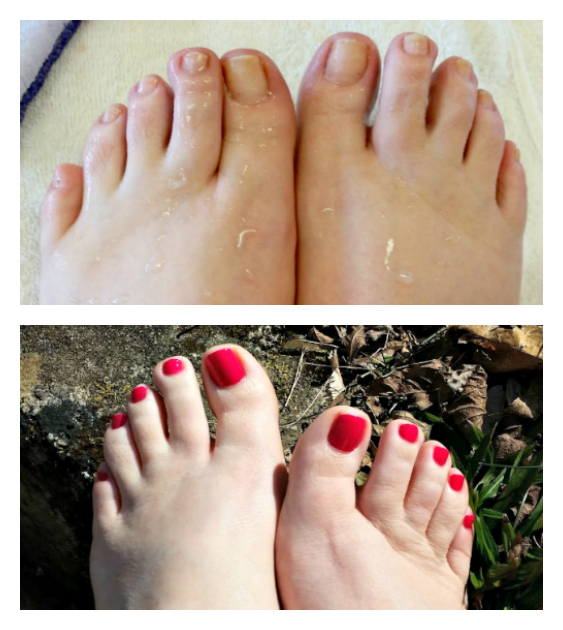 Pamper Yourself With The Perfect Home Pedicure Collage