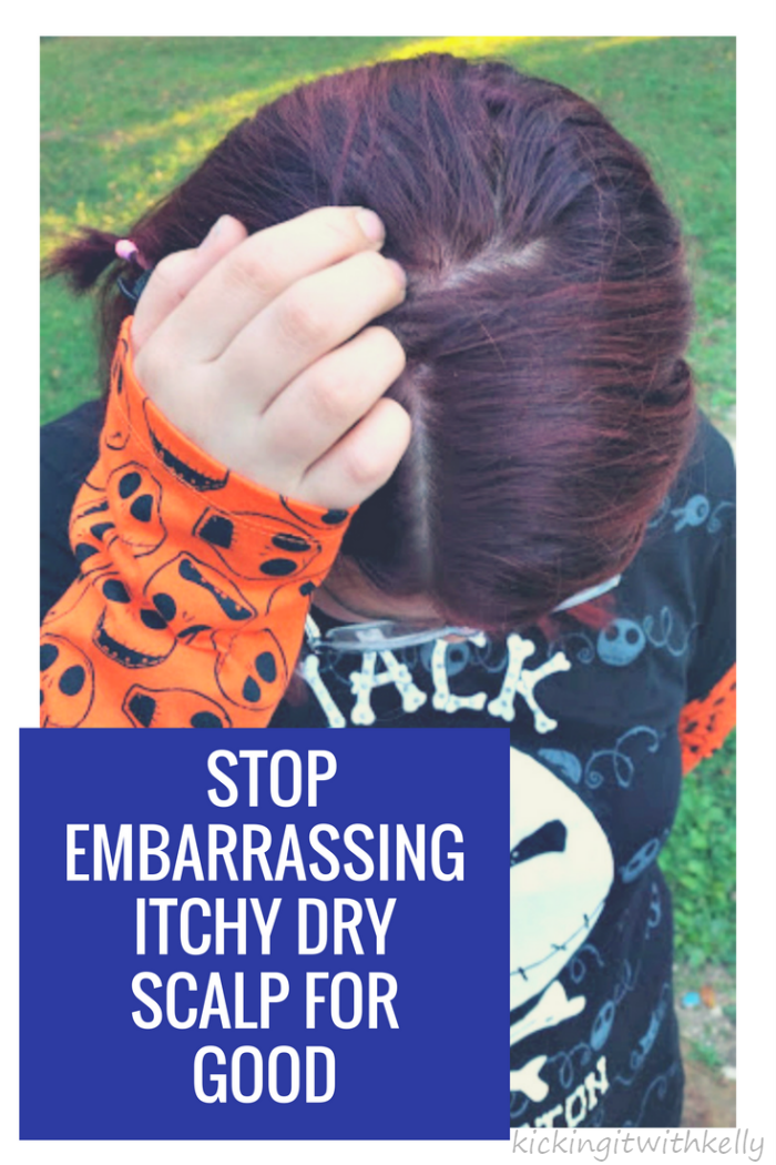Do you have dandruff? No worries! Here are some great tips How To Stop Your Embarrassing Itchy Dry Scalp For Good