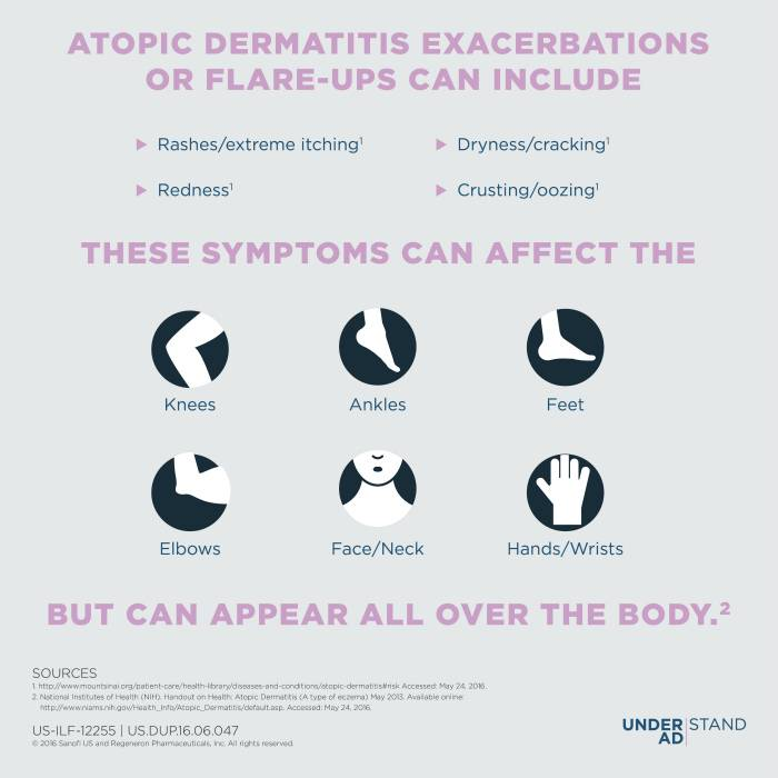 Educating People about Atopic Dermatitis symptoms graphic