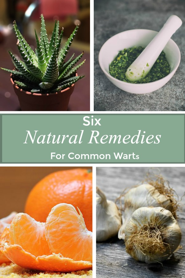 six natural remedies for common warts pin
